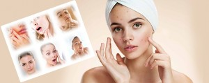 Get rid of acne and scars at instasculpt