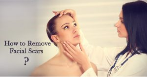 How-to-Remove-Facial-Scars