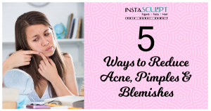 Acne and blemish removal
