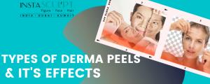 derma chemical peel